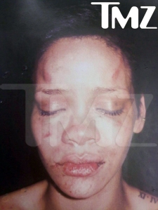 rihanna-bruised-picture